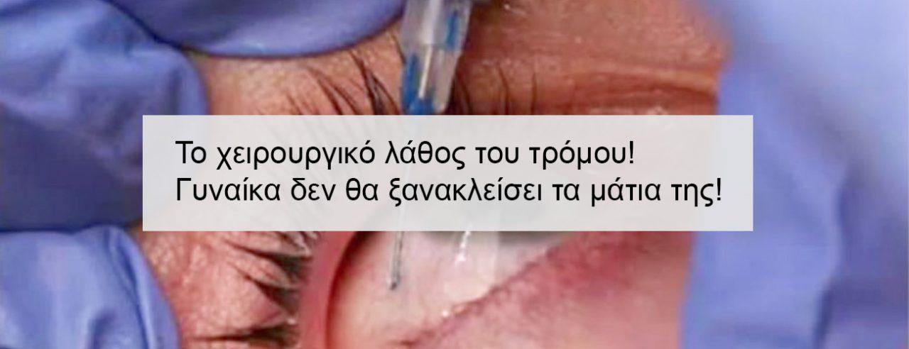 Το χειρουργικό λάθος του τρόμου-Γυναίκα δεν θα ξανακλείσει τα μάτια της