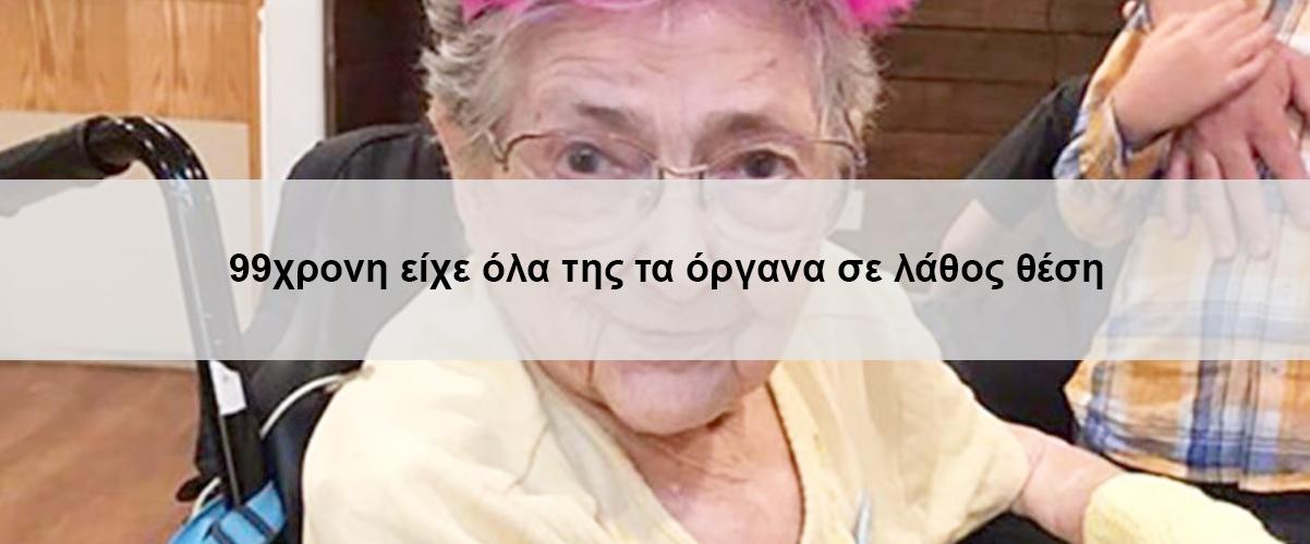 99χρονη είχε όλα της τα όργανα σε λάθος θέση